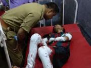 BHU unrest: After police lathicharge, many circulate fake image of injured girl not related to incident