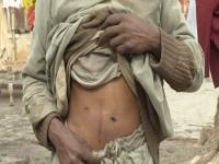 Watch: Wealth and Poverty keep Pakistan's Illegal Organ Trafficking Trade alive