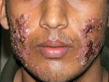 Image courtesy Facebook page: No steroid cream on face without a Dermatologist's prescription