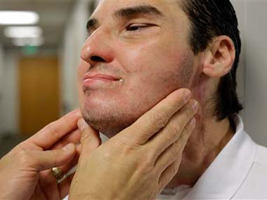 Richard Norris's skin is inspected by Dr. Eduardo Rodriguez, who led the surgical team that performed Norris' face transplant: AP