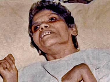 Aruna Shanbaug. PTI