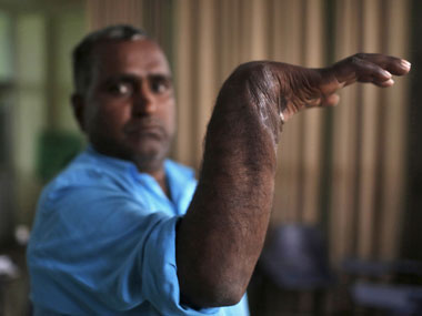 Visheshwar, a worker, displays his re-attached right hand, after an interview in Gurgaon. Reuters