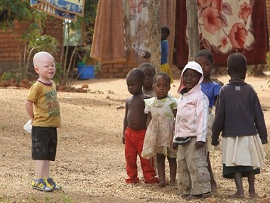 At least 18 Albino people have been killed in Malawi since November 2014. AP.