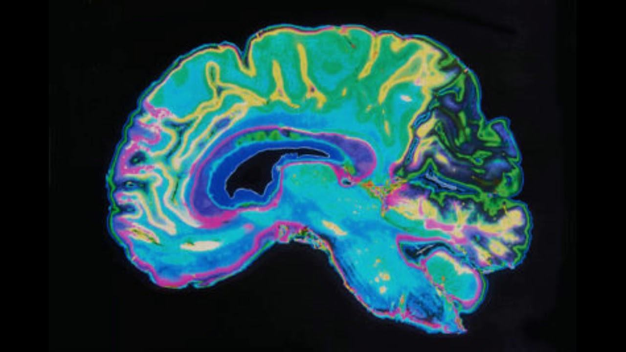 Many processes in the human brain remain a mystery to neuroscientists.